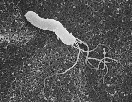 ヘリコバクター・ピロリ菌について|いしい内科・糖尿病クリニック ...